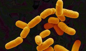 Lactobacillus_rhamnosus